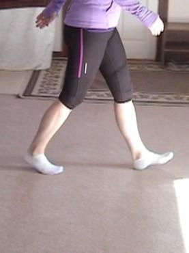 Runner with Plantar pain demonstrates her heel strike gait pattern